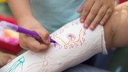 Ein Kind malt auf den Gipsarm eines anderen Kindes. © imago/Westeind61 Fotograf: imago/Westeind61