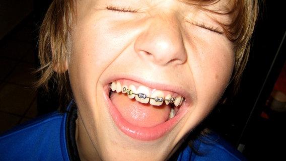 Ein Junge mit einer Zahnspange lacht. © Smubo / photocase.de Foto: Smubo / photocase.de