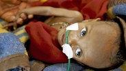 Mangelernährtes Kind in Schwarzafrika © dpa - Report
